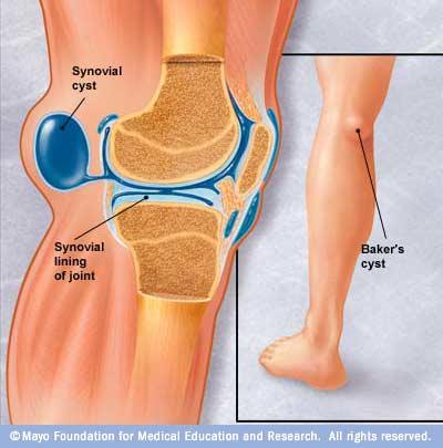 artroza tratamentului chistului articulației brutarului la genunchi