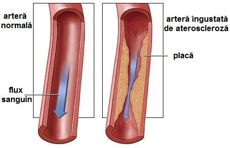 cum se tratează ateroscleroza varicoasă)